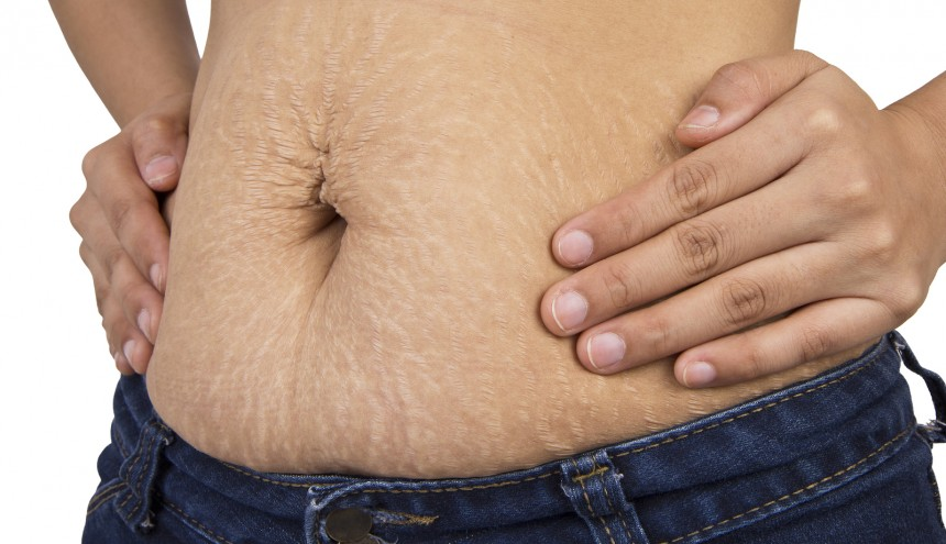 Fat After Liposuction: The Truth About Long-Term Effects ...