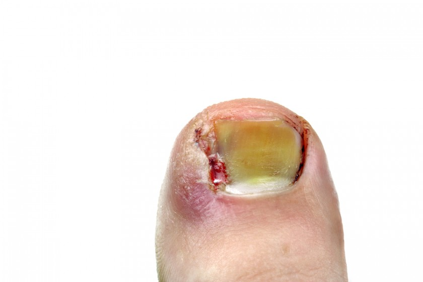 Ingrown Nails: Pain Relief, Symptoms, and How to Prevent Toenail ...