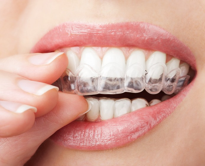 Whitening Teeth With Hydrogen Peroxide
