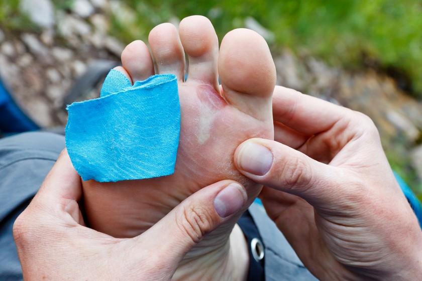 Blase Am Fuß Entzündet Blutvergiftung