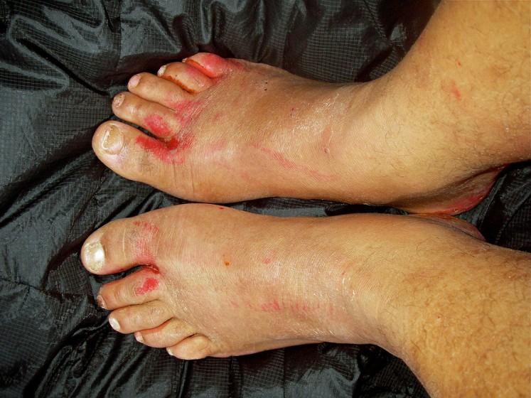 How to Treat Blood Blisters Under The Nail – Healthy Diet Base