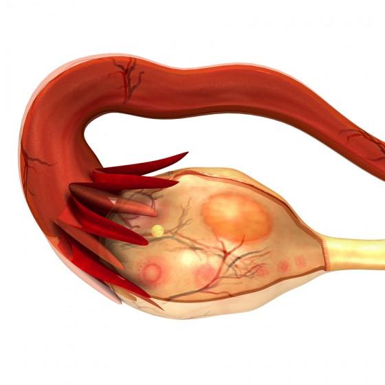 Hydrosalpinx and Treatment