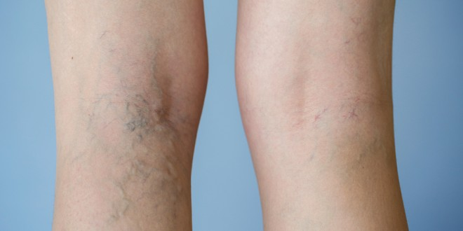 Spider Veins Overview Signs Amp Symptoms Causes